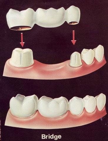 infektion efter tandutdragning symtom