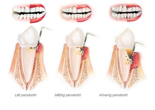 infektion i tand symtom